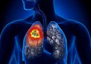 סרטן ריאה תאים שאינם קטנים